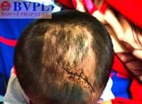 Nghi vấn cháu bé 3 tuổi bị mẹ ruột và cha dượng bạo hành dã man