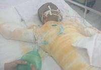 Cha dượng thiêu sống 3 mẹ con ở Đồng Nai Hai cháu bé đã tử vong