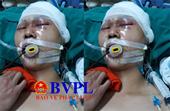 Một học sinh cấp ba bị đánh tụ máu não ngay trước cổng nhà