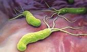 Bé 5 tuổi mang vi khuẩn gây 70 ung thư dạ dày do cha mẹ hay hôn, mớm cơm