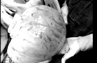 Cô gái mang khối u buồng trứng khổng lồ nặng 8kg do điều trị bằng thảo dược