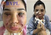 Người phụ nữ xinh đẹp nhập viện hút mủ trên mặt vì đi spa