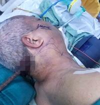 Người đàn ông mắc bệnh tim bị cây sắt đâm xuyên vùng cổ vẫn sống ngoạn mục