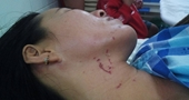 Lời khai trong nước mắt của người vợ bị chồng bạo hành, dìm xuống bể bơi ở Tây Ninh
