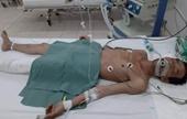 Tìm thân nhân người đàn ông chấn thương sọ não nguy kịch do tai nạn giao thông