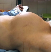 Cụ bà có khối u buồng trứng to như có thai 9 tháng