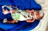 Tìm người thân cho bé sơ sinh sinh non tử vong tại bệnh viện