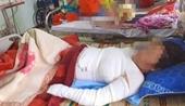 Mổ cứu thai nhi của người mẹ đổ xăng tự thiêu vì ghen tuông