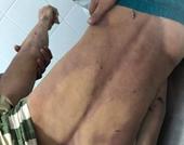 Nam thanh niên tử vong trong nhà tạm giữ Công an huyện