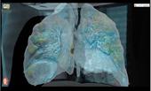 Video 3D tái hiện COVID-19 tấn công phổi người bệnh
