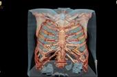 Virus SARS-CoV-2 tàn phá lá phổi của con người như thế nào