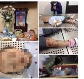 Tạm giữ hình sự cặp vợ chồng bạo hành dã man khiến bé gái tử vong ở Hà Nội