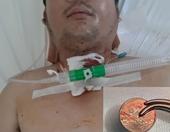 Phẫu thuật cấp cứu kịp thời, cứu sống nạn nhân mắc đồng xu trong khí quản
