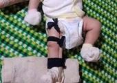 Bất ngờ với lời khai của người cha bị tố đánh con ruột 2 tháng tuổi gãy chân