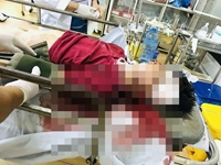 Thương tâm hai mẹ con đi bộ bị xe máy tông tử vong ở Bình Phước