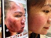 """Bôi thuốc trị nám mua online, người phục nữ """"cháy đen"""" da mặt"""
