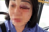 Nữ tiếp viên xe buýt bị đánh vì nhắc khách mở nhỏ nhạc