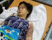 Truy tố 3 bị can tra tấn dã man cô gái tuổi teen đến sẩy thai
