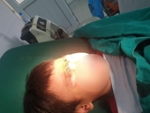 Quạt trần rơi trúng đầu một học sinh lớp 2