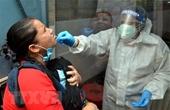 Mỹ có thể vô hiệu hóa hoàn toàn virus SARS-CoV-2