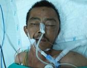 Tìm người nhà nạn nhân chấn thương sọ não nặng do tai nạn giao thông