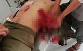 Mìn tự chế phát nổ, 7 người bị thương