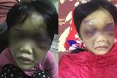 Phẫn nộ vụ mẹ ruột đánh đập dã man con gái 6 tuổi