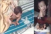 Bé gái 11 tháng tuổi bị cha ruột đánh đập dã man
