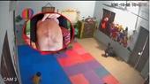 Đình chỉ cơ sở mầm non để cháu bé 22 tháng tuổi bị đánh tím người