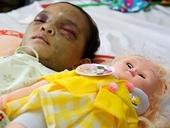 Ai được quyền nuôi dưỡng bé gái bị bạo hành dã man