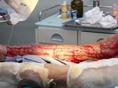 Hoại tử chân sau một mũi tiêm