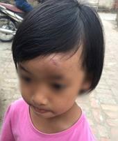 Những bạo hành trẻ mầm non trong tháng 2 2017